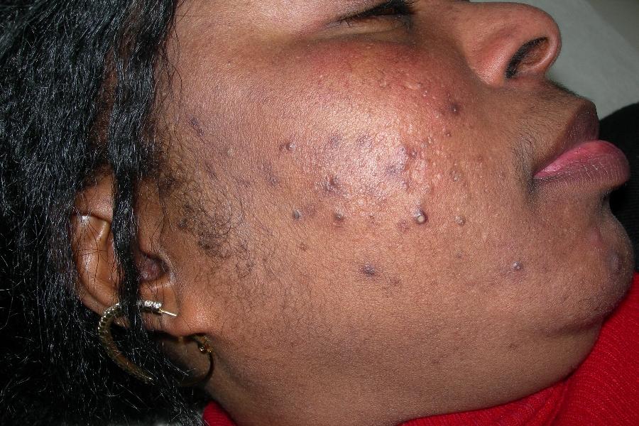 """Acne – """"a doença de espinhas na cara"""" – causas e tratamento"""