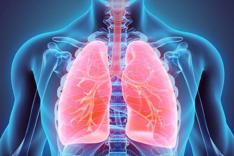 Câncer de pulmão: Conceito e seus efeitos