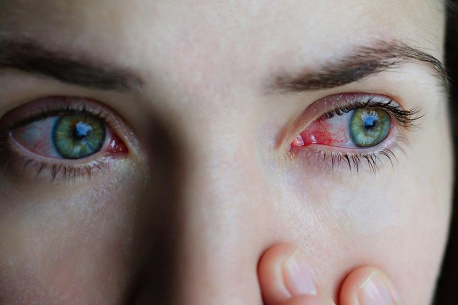 Coronavírus: Olhos vermelhos