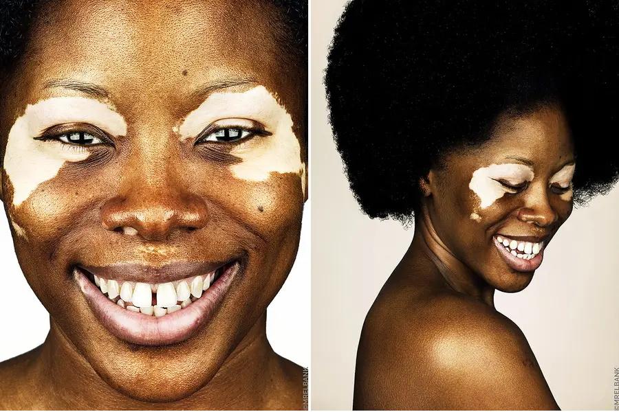 Vitiligo: A beleza da imperfeição
