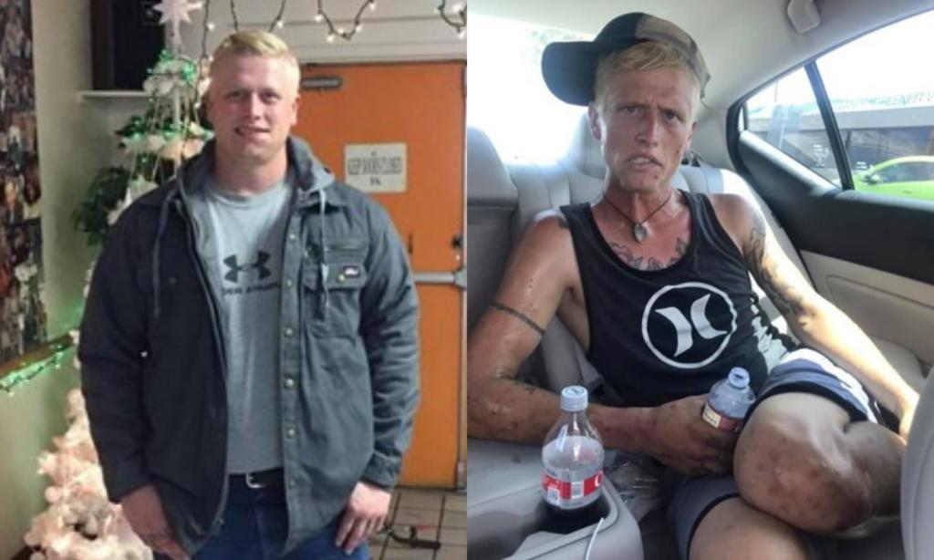 Mãe partilha fotos do filho antes e depois de este consumir drogas