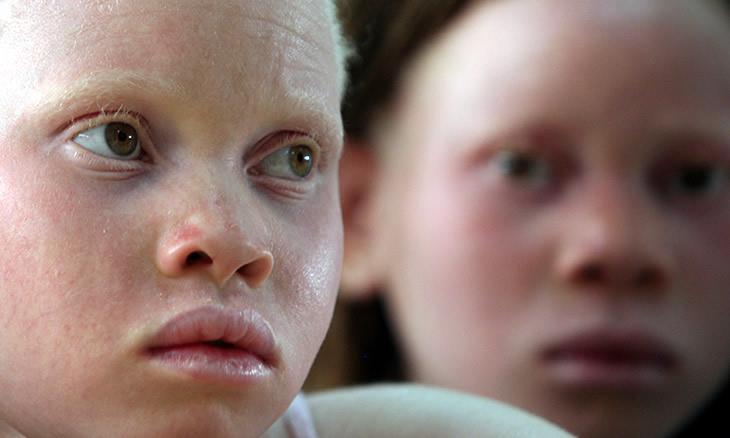 Faltam 114 albinos, diz Comissão de Direitos Humanos – Relatório da AIM