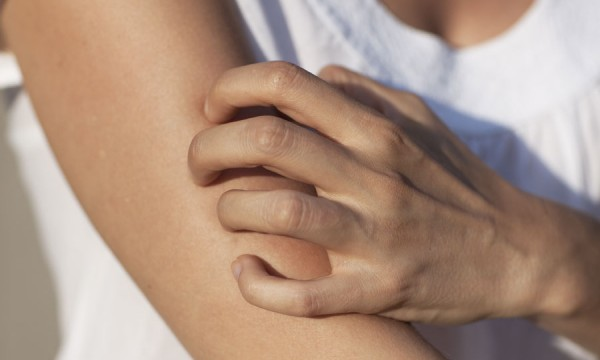 Saude: Dermatite Atópica